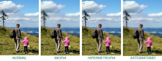 miopia-hipermetropia-e-astigmatismo